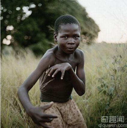 非洲祖先为了防止患上皮肤癌进化而来的 非洲人才那么黑