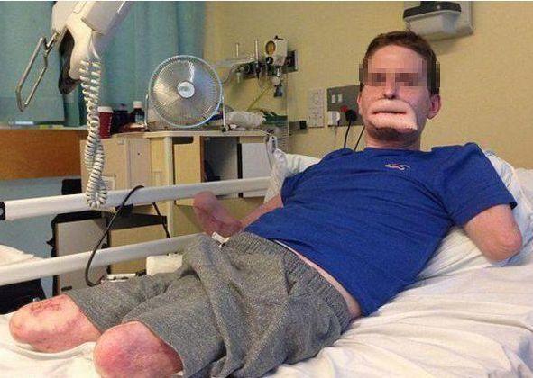 男子突然昏迷,送往医院,两天后发现四肢不见了