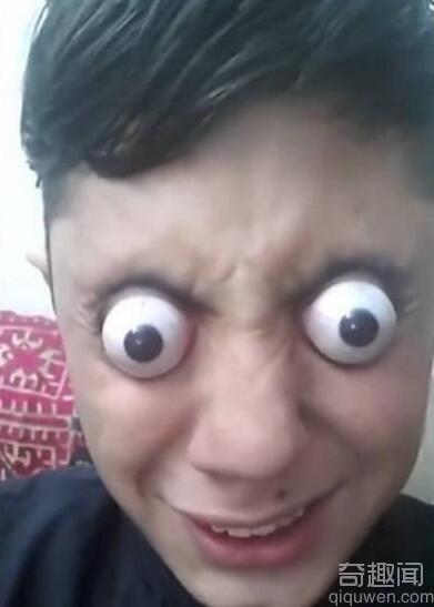 14岁少年可将眼球弹出 实在太吓人