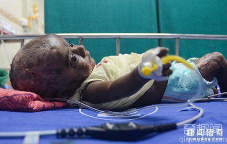 印度男婴出生3个月自燃4次 并未接触火种