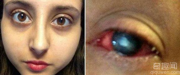 少女眼睛红肿骇人 原来是寄生虫蚕食眼睛