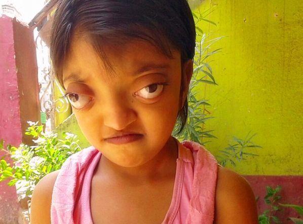 """女孩长有一对""""青蛙眼"""",被众人嫌弃,原因让医生泪目"""
