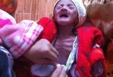 """男婴出生像""""老头"""",家人以为是正常,结果医院检查让全家人泪目"""