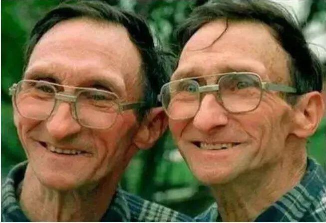 百万分之一的概率竟然发生了!福建一对双胞胎有两个爹...