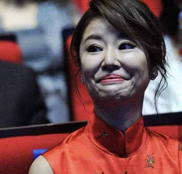 43岁林心如现身,所有人都被她的鼻子吓到网友:像匹诺曹