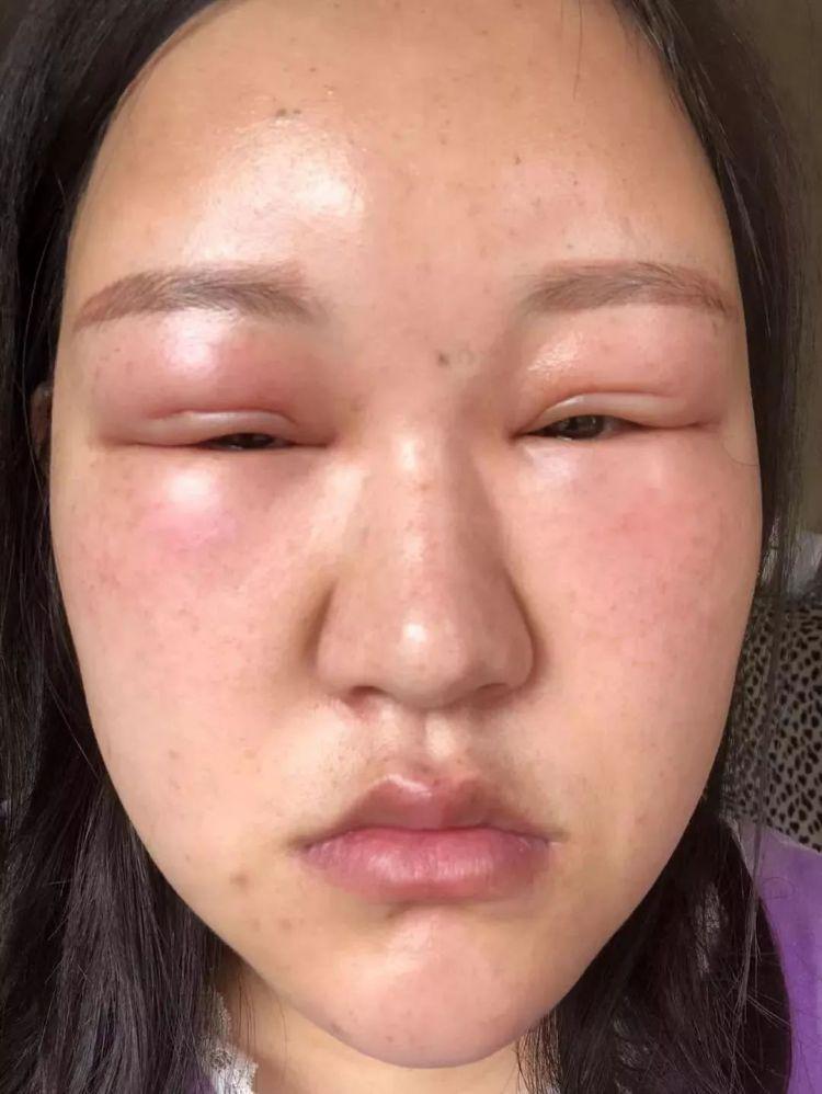 """逗B奇闻丨闹心!一女子注射玻尿酸后,整张脸肿成这种""""鬼样子""""!美容院回复……"""