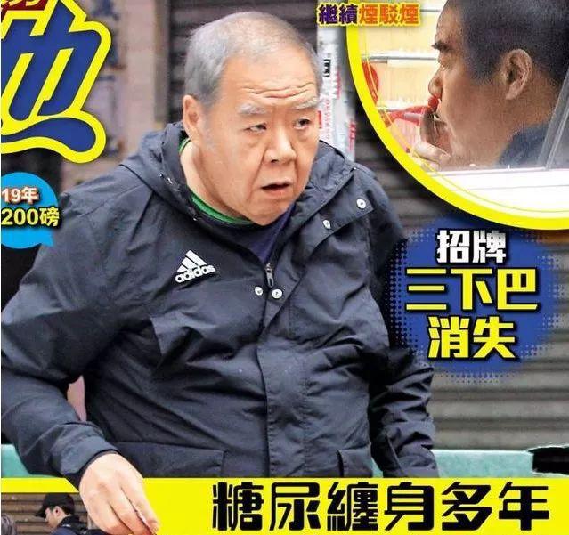 68岁肥猫郑则仕糖尿失控,曾暴瘦30磅,现状态回春自资拍鬼片