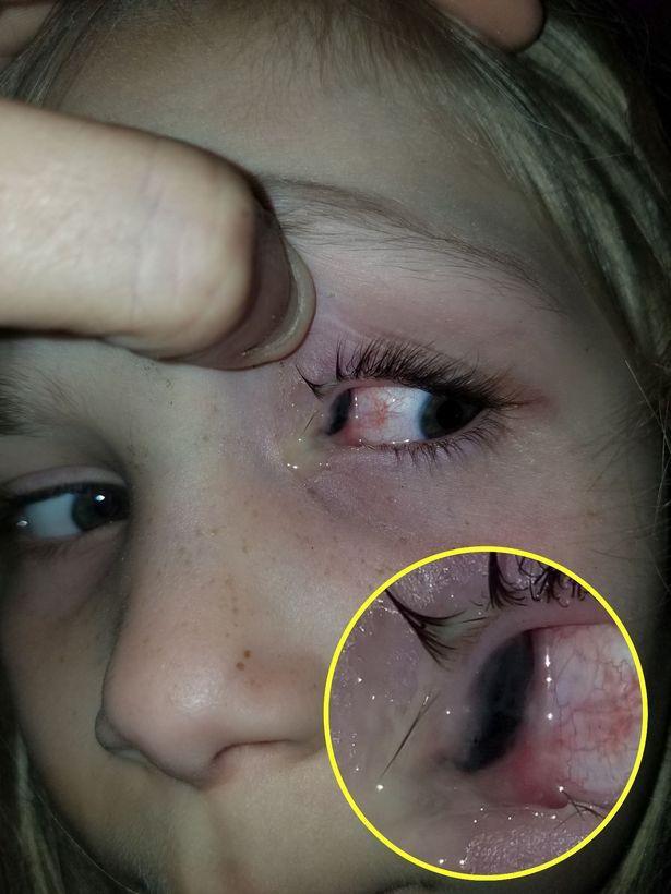 不寒而栗!美国小女孩半夜喊眼疼,到医院时眼睛中竟爬出黑色甲虫
