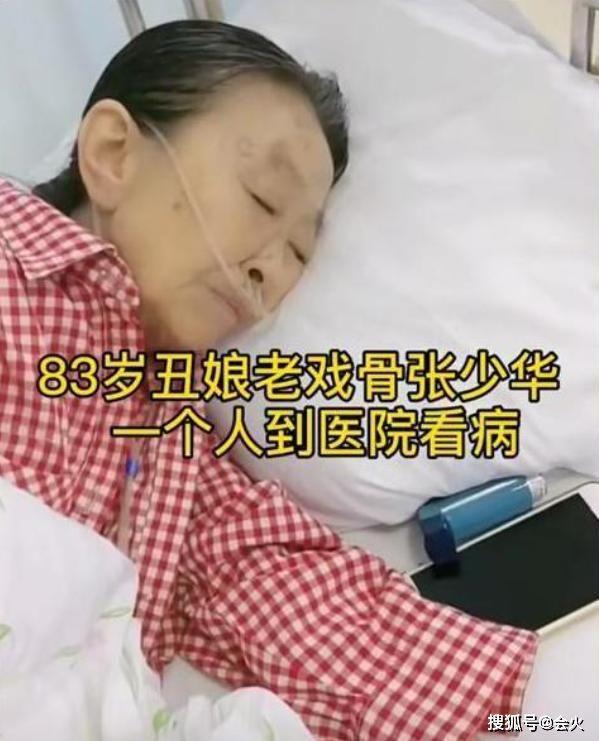 """83岁""""丑娘""""张少华晚年凄惨?插呼吸机独自住院,瘦骨嶙峋无人管"""