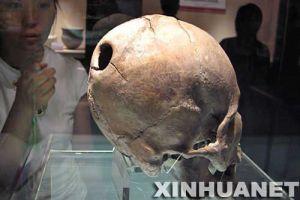 [图文]山东博物馆展出5000年前开颅手术实例颅骨