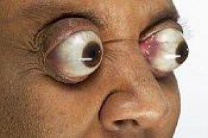世界上最长的眼球 突出眼眶外11毫米