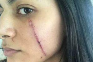 女子因长得太美,光天化日被人用刀片划开了脸,要缝44针